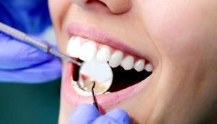 如何去除牙齿烟渍的办法