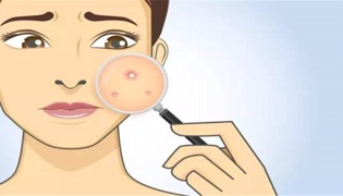 怎么去除脸上的痘印