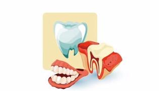 牙周炎怎么治疗